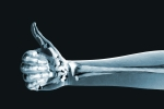 shutterstock_111524120 thumbs up xray Mar15
