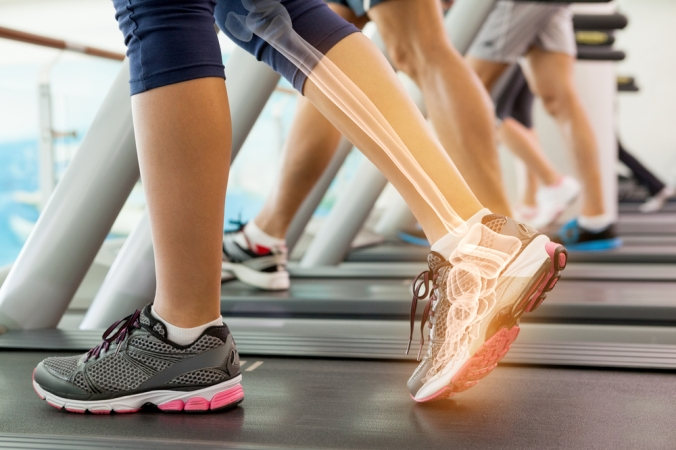 shutterstock_271645694 jogger with bones higlighted in leg Aug15